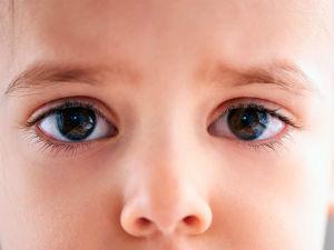 Один глаз больше другого