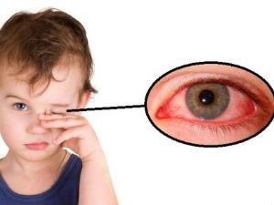 Красные глаза у детей