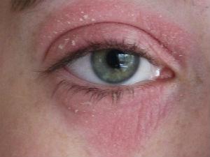Красные круги вокруг глаз
