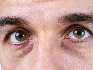 Мешки под глазами у мужчины