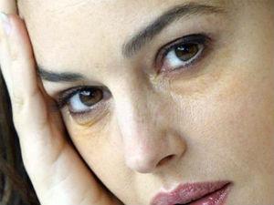 Желтые круги под глазами у женщины