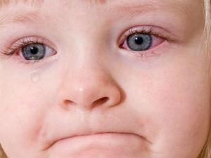 Воспаление глаз у ребенка