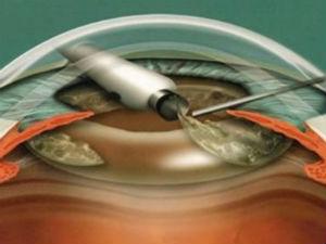 Замена хрусталика глаза
