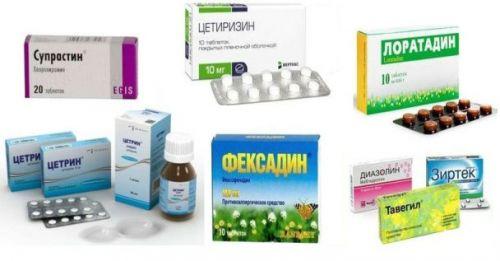 Антиаллергические препараты
