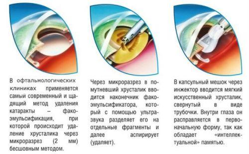 Этапы избавления от катаракты