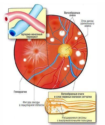 Глазное дно при ангиоспазме сетчатки