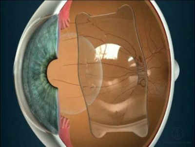 Факичная линза внутри глаза