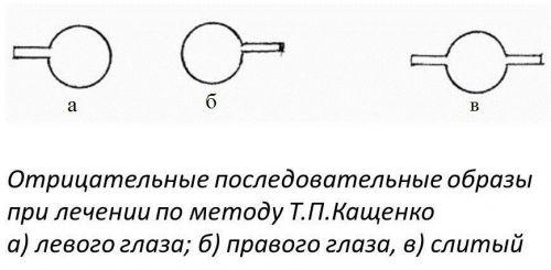 Метод Т.П.Кащенко