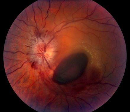 Внутренне кровоизлияние при исследовании глазного дна