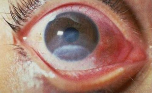 Признаки поражения глаза от сварки