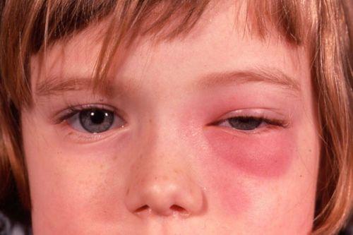 Гнойное воспаление глаза