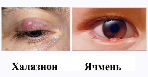 Ячмень и халязион