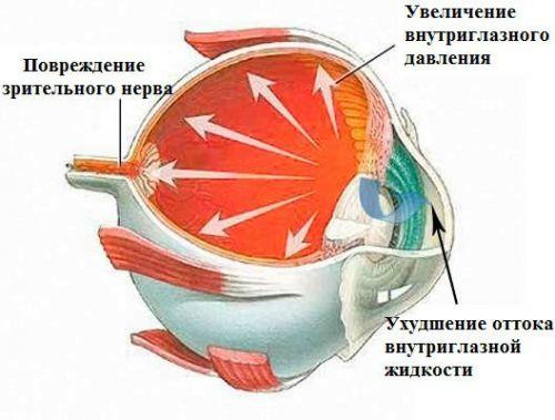 Повреждающие факторы при глаукоме