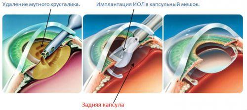 Операция при катаракте