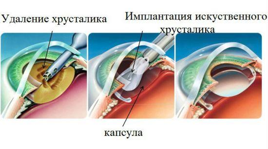 Ход операции по ленсэктомии