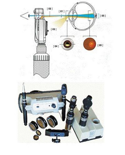 Офтальмоскоп