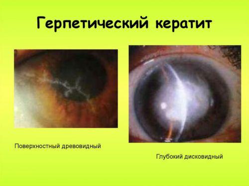 Герпетический кератит