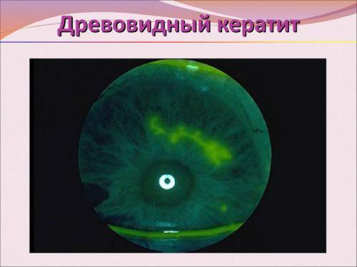 Древовидный кератит