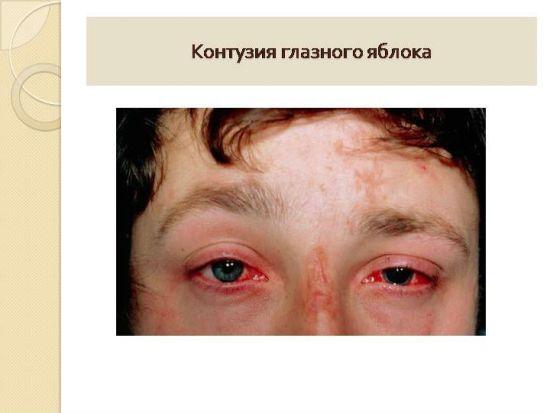 Контузия глазного яблока