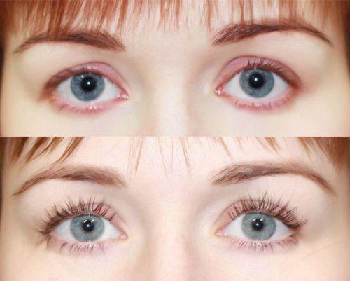 Глаза после использования геля для ресниц