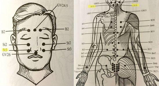 Точечный массаж при глаукоме