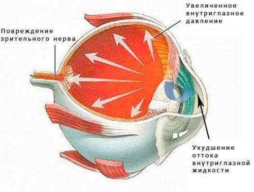 Опасности глаукомы