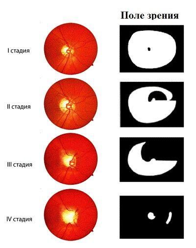Поля зрения при глаукоме
