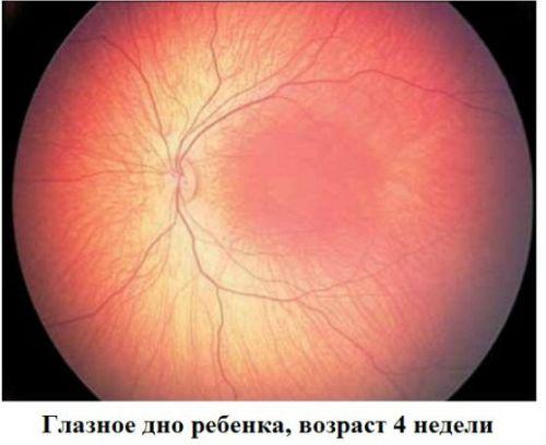 Глазное дно ребенка