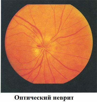 Оптический неврит