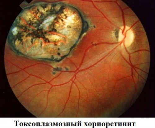 Токсоплазмозный хориоретинит