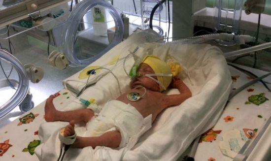 Недоношенный младенец в кювезе