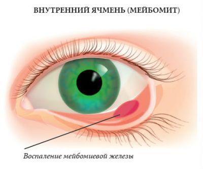 Мейбомиит