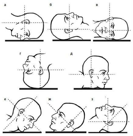 Проекции при рентген-исследовании глазницы