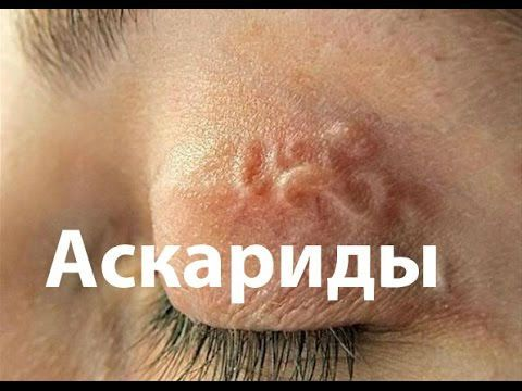 Аскарида в глазу