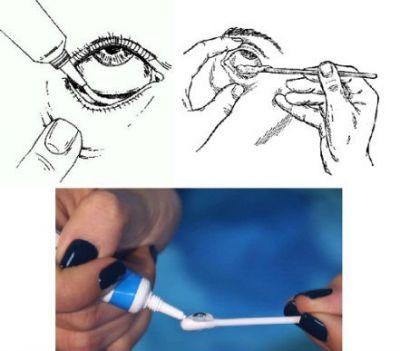 Применение глазной мази