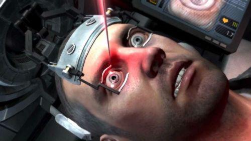 Лазерная операция на глазах