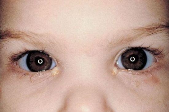 Гнойные выделения из глаз