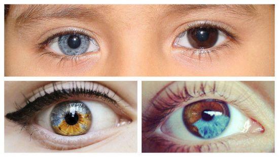 Человек с разным цветом глаз