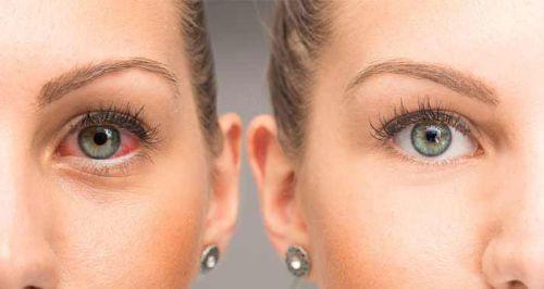 Покраснение глаза