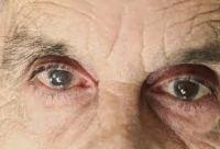 Старческая катаракта