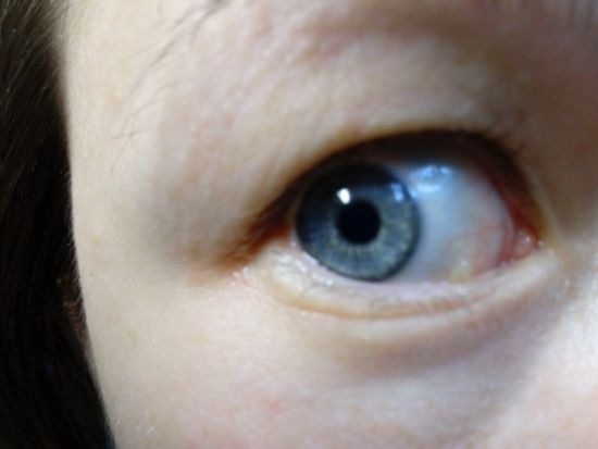 Киста глаза