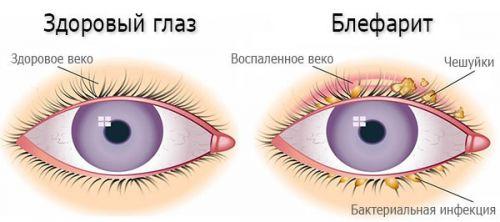 Глазные капли Комбинил Дуо