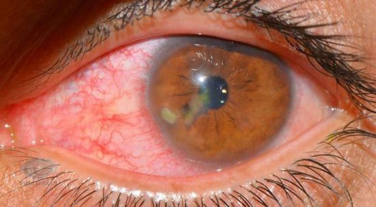 Воспаленный красный глаз