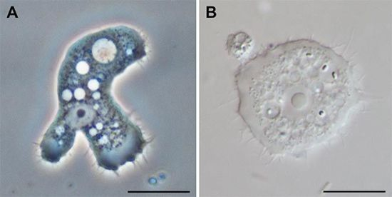 Акантамеба под микроскопом