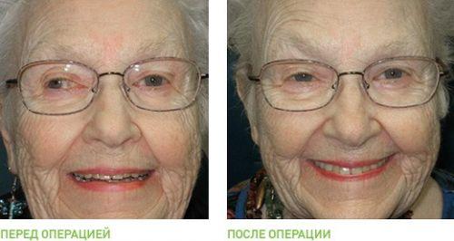 До и после операции при косоглазии