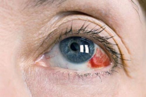 Кровоизлияния в склеру