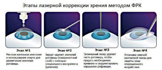 Проведение лазерной коррекции