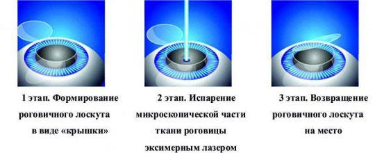 Схема лазерной коррекции Ласик