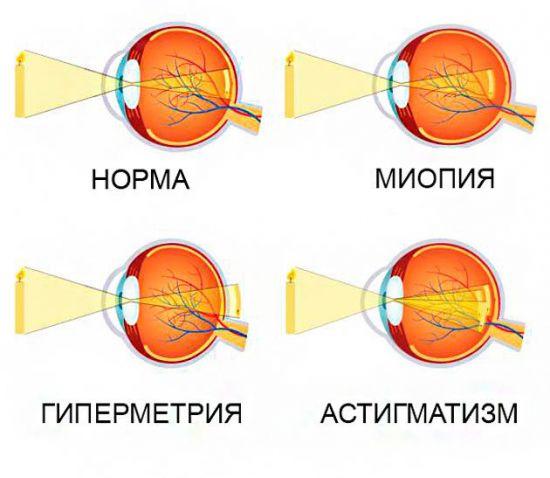 Патологии зрения