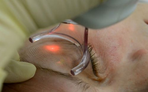 Безоперационная лазерная блефаропластика